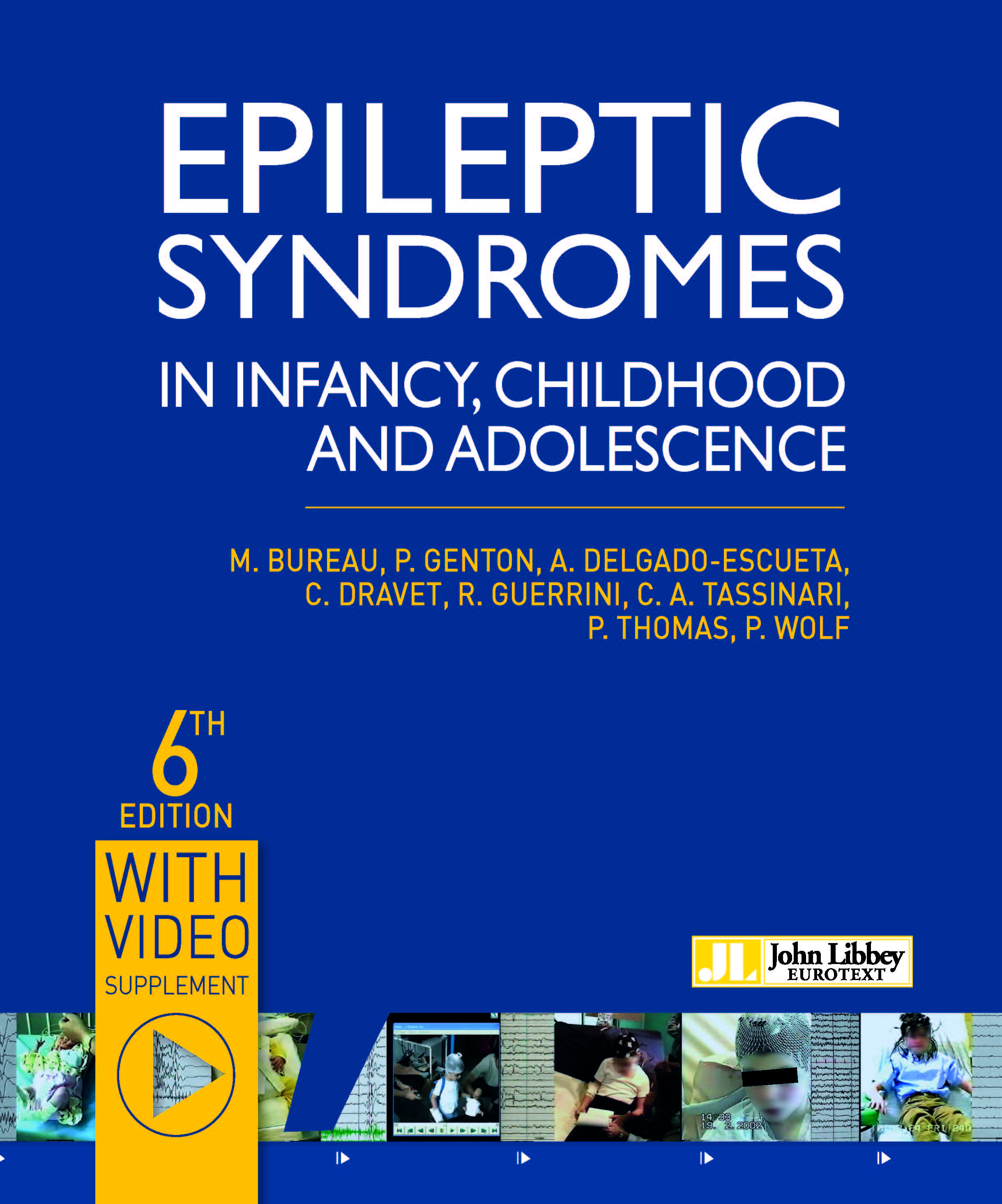 syndromes epileptic